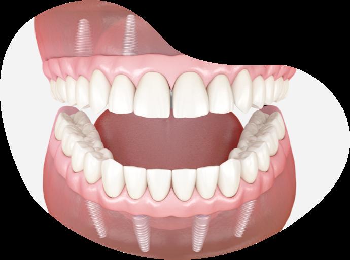 cartão dental PNID